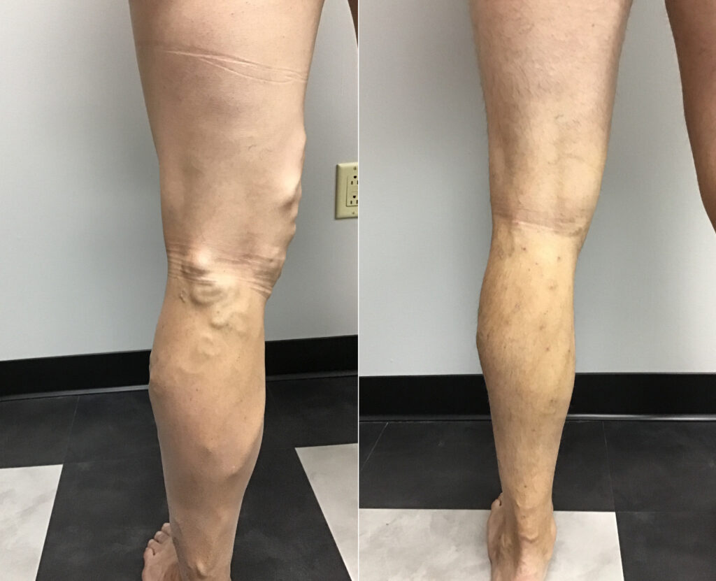 varicose veins before and after