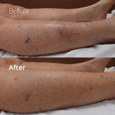 IVLC_Web-img_BeforeAfter_SpiderVein-01