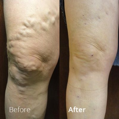 IVLC_Web-img_BeforeAfter_VericoseVein-01