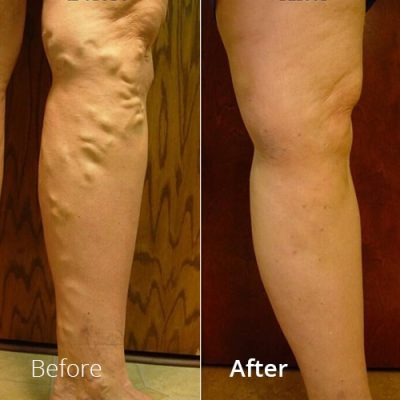 IVLC_Web-img_BeforeAfter_VericoseVein-03