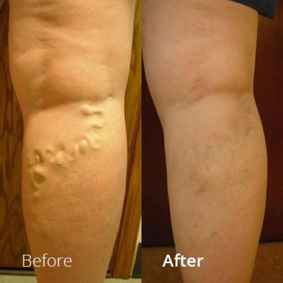 IVLC_Web-img_BeforeAfter_VericoseVein-04
