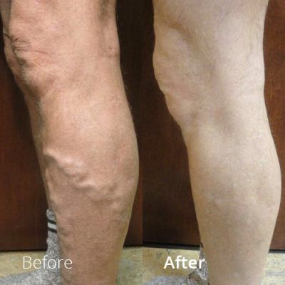 IVLC_Web-img_BeforeAfter_VericoseVein-05