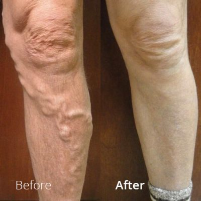 IVLC_Web-img_BeforeAfter_VericoseVein-06