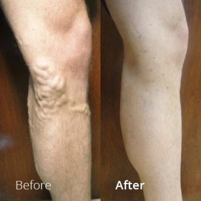 IVLC_Web-img_BeforeAfter_VericoseVein-08