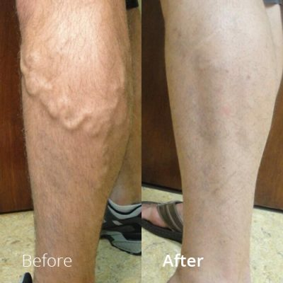 IVLC_Web-img_BeforeAfter_VericoseVein-09